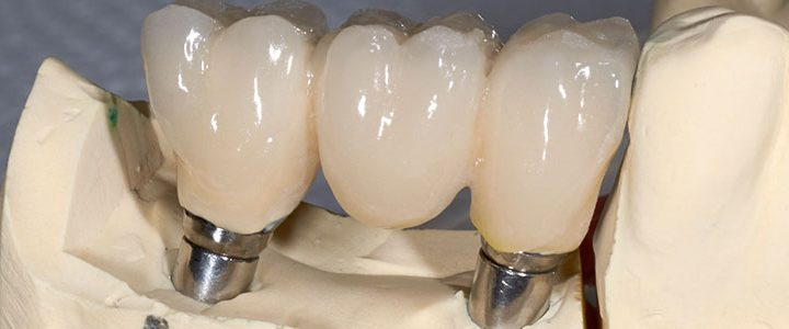 Dental Implants in St Louis